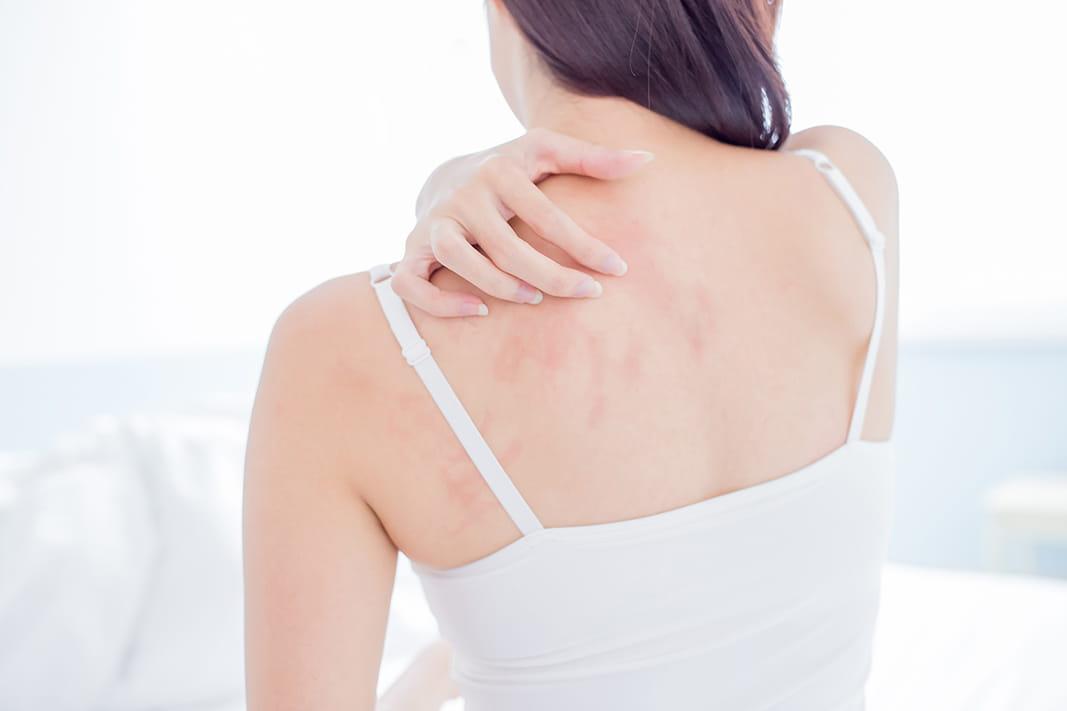 Was hilft gegen trockene und raue Haut?