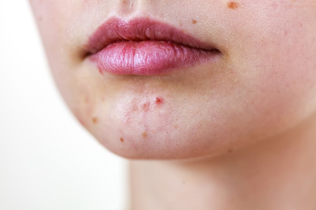 Warum haben wir unreine Haut?